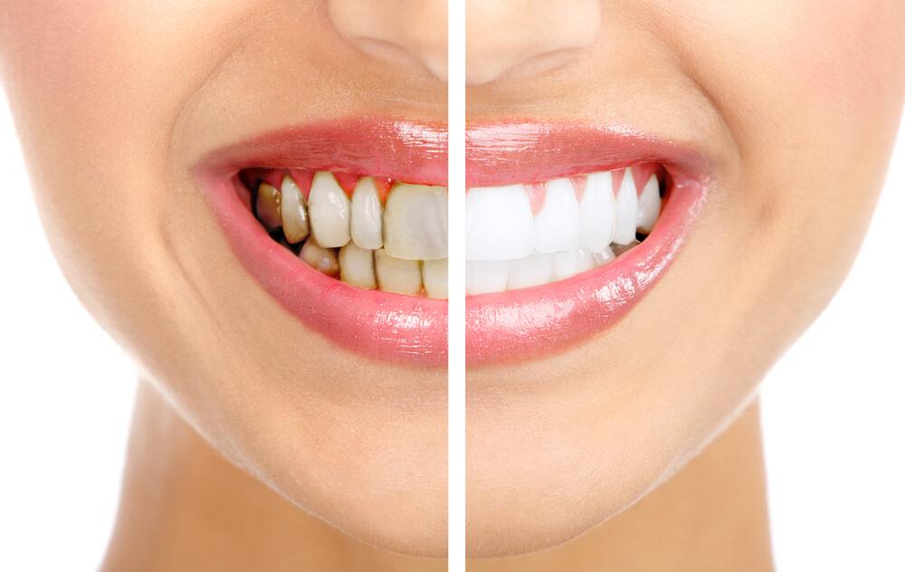 Зубной камень: до и после