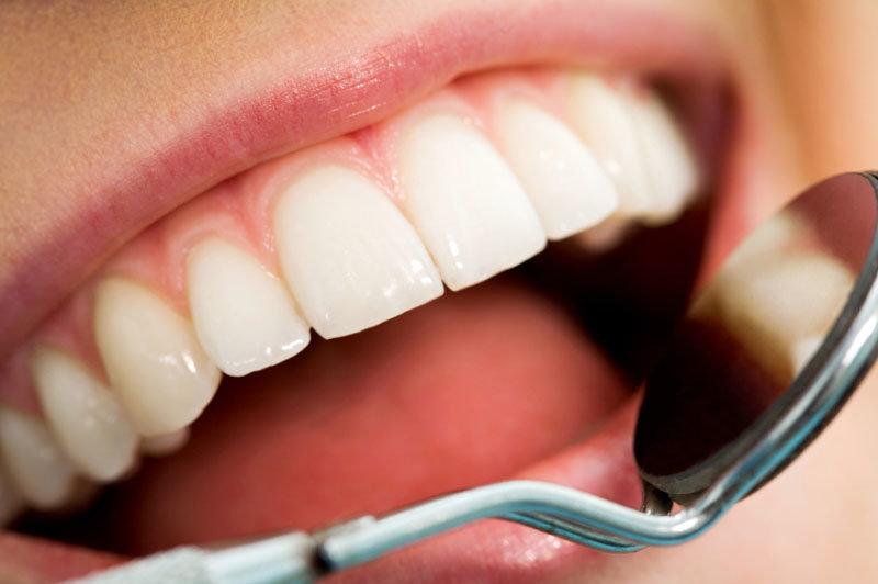 Наращивание зубов как способ устранения эстетических проблем