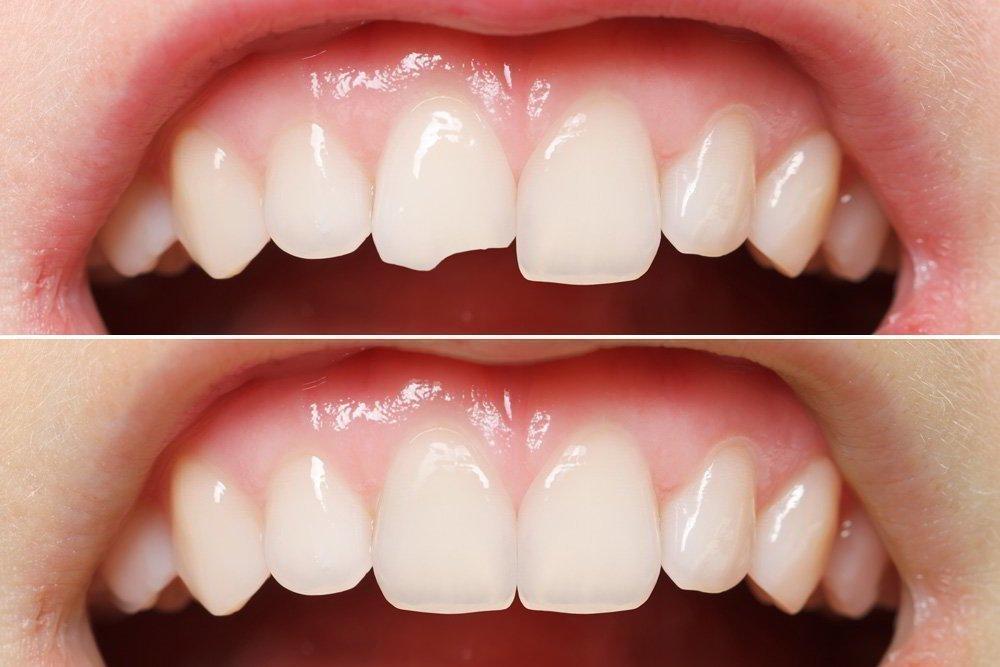 Восстановление зубов до и после
